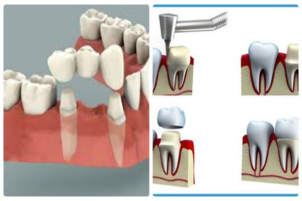 bọc răng sứ, ham bọc răng sứ, kỹ thuật bọc răng sứ, hệ lụy của việc bọc răng sứ