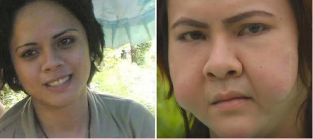 khuôn mặt biến dạng, biến dạng, phẫu thuật thẩm mỹ, làm đẹp