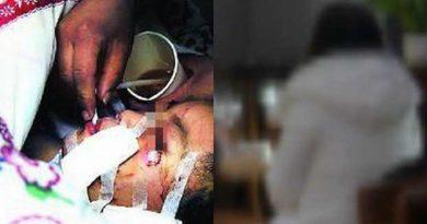 cô gái trẻ bị cắn rách mặt vì đòi chia tay