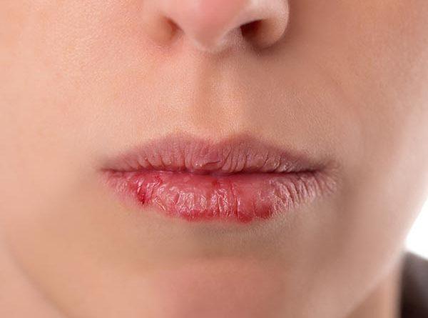 Môi khô nứt nẻ có ảnh hưởng đến sức khỏe của bạn?