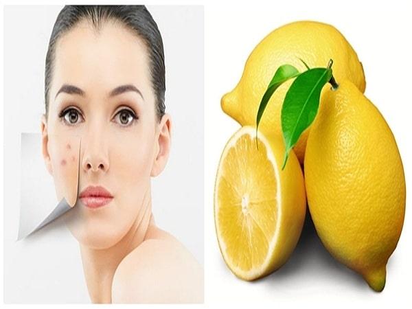 5 loại mặt nạ cho da mụn tốt nhất từ nguyên liệu tự nhiên