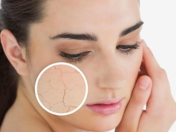 5 cách trị nẻ mặt hiệu quả tại nhà các bạn nữ nên biết