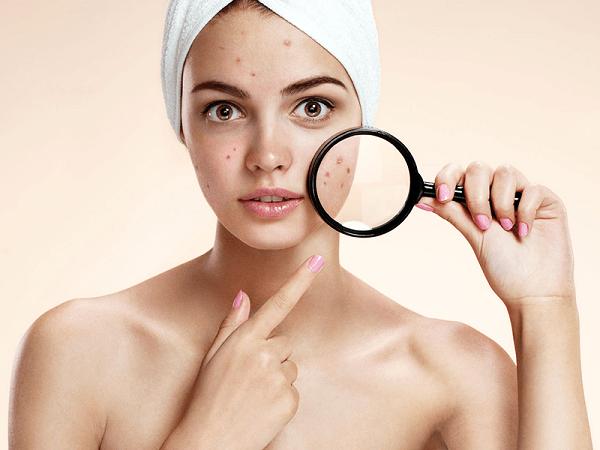Ăn gì để hết mụn nhanh chóng và phục hồi da sau tổn thương?