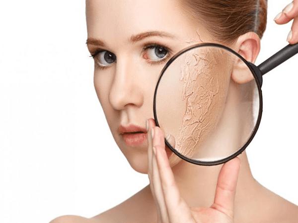 Da khô đắp mặt nạ gì - 4 loại mặt nạ cứu rỗi làn da khô hiệu quả
