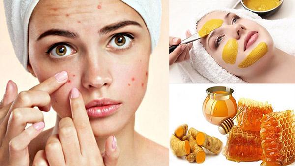 Mật ong - thần dược điều trị các vết thâm sau mụn
