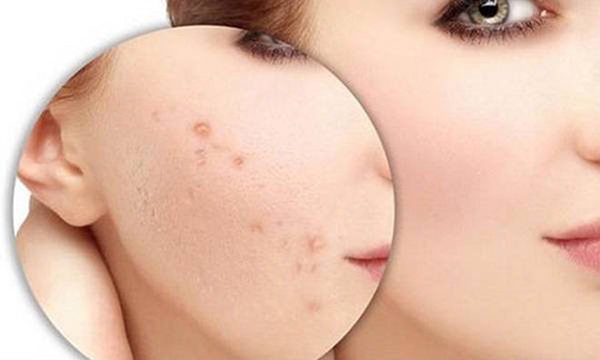 Cách trị mụn ẩn hiệu quả nhất chính là vệ sinh da mặt sạch sẽ