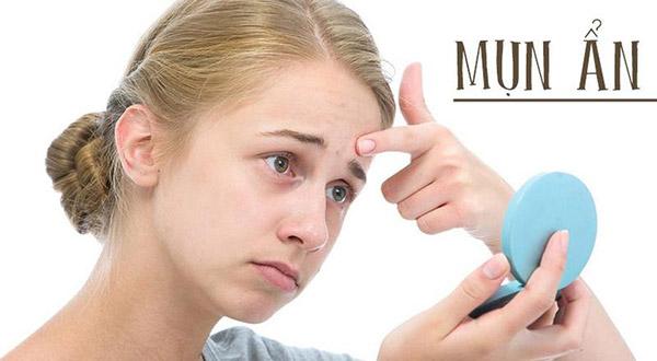 Mụn ẩn là một loại mụn dưới da khó điều trị