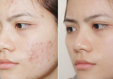 Hướng dẫn cách trị mụn ẩn dưới da hiệu quả